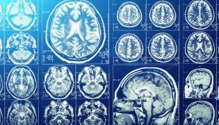 Obraz tomografii mózgu