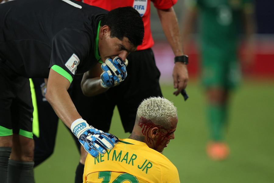 """Neymar dostał z """"łokcia"""" i zalał się krwią. Gwiazdor musiał opuścić boisko"""